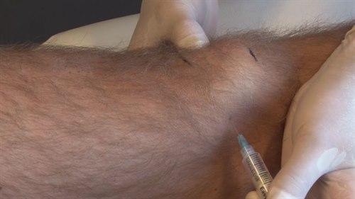 Insticksställe vid intraartikulär injektion av knäled