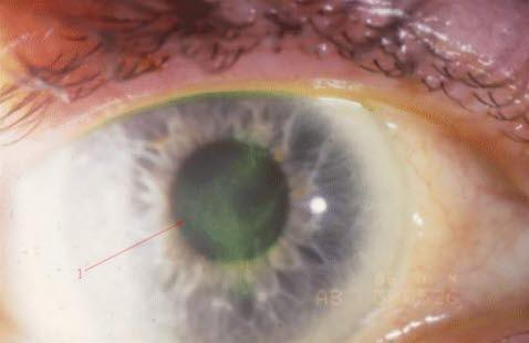 svarte flekker i synsfeltet
