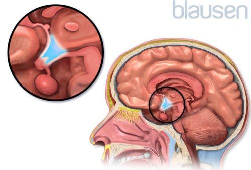 Hypofyse og hypotalamus