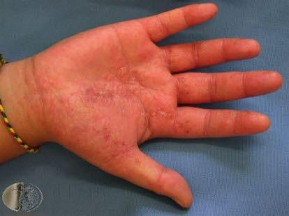 små væskefylte blemmer på huden