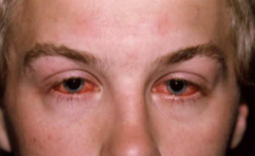 symptomer på øyekatarr