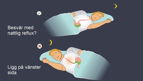 Besvär med nattlig reflux – ligg på vänster sida