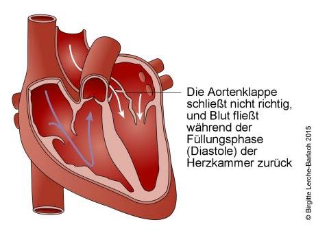 Aorteninsuffizienz