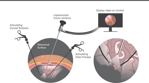 laparoskopi.jpg