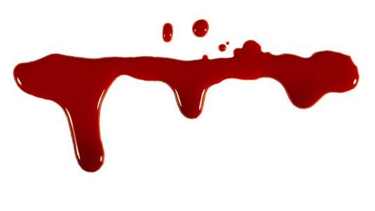 mye blod i avføring