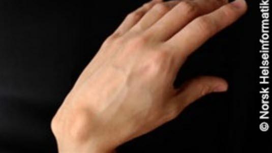 vondt i håndledd og fingerledd