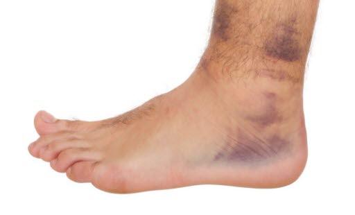 Knöchelverletzung - Deximed