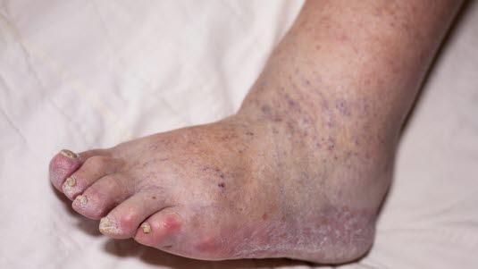 Blodpropp Symptomer Arm