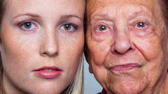 Aldersforandringer i huden