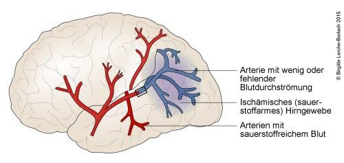 Hirninfarkt (Schlaganfall durch Gefäßverschluss)