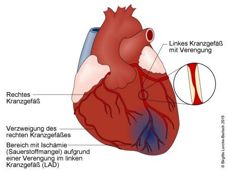 Herz bei Angina pectoris