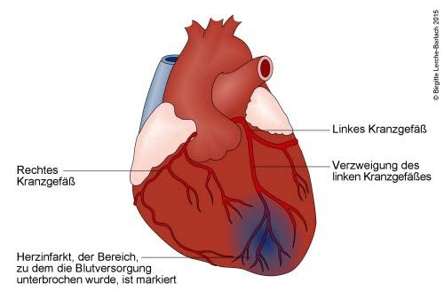 Herzinfarkt durch Verschluss des linken Herzkranzgefäßes
