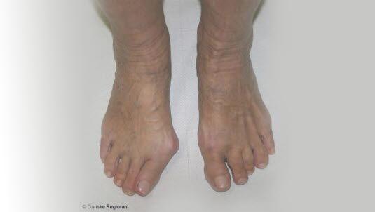 Høyhælte sko kan gi kroniske fotplager | Kilden