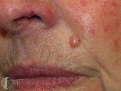 hudkreft symptomer bilder