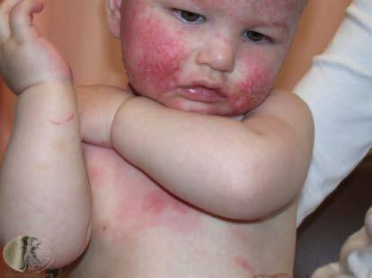 atopisk dermatit behandling