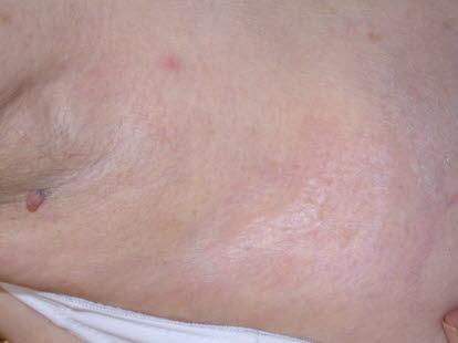 71a2706c Lichen sclerosus kan gi hudforandringer som er hvite, røde, pigmenterte,  hevede eller med sårdannelse.