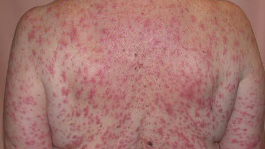 kløe over hele kroppen allergi