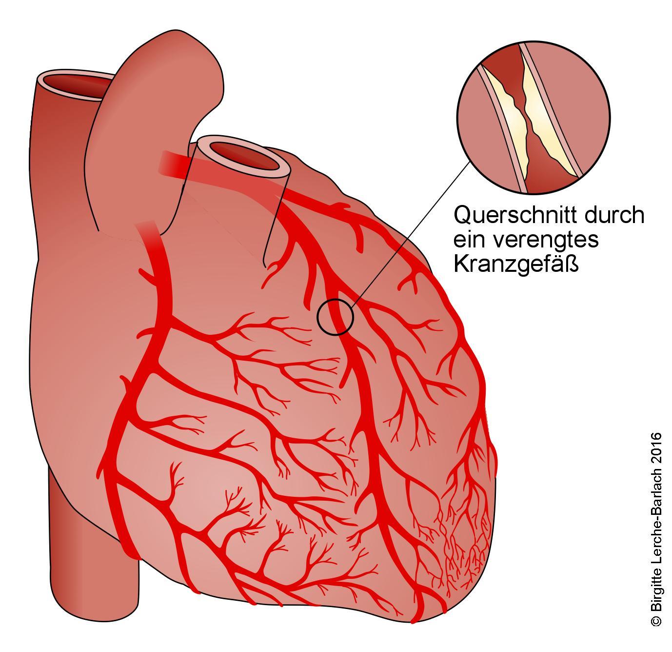 Herz mit Herzkranzgefäßen und Verengung (Stenose)