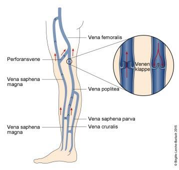 Venen in den Beinen