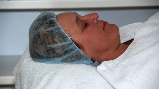 Laserbehandling ansikt