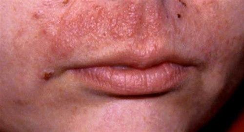Allergisk kontakteksem