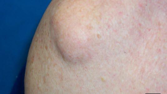 cyster i livmoren navn på muskler i kroppen