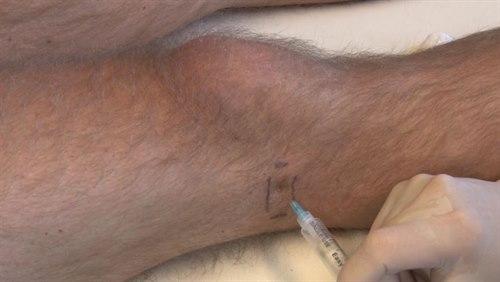 Insticksställe för tractus iliotibialis