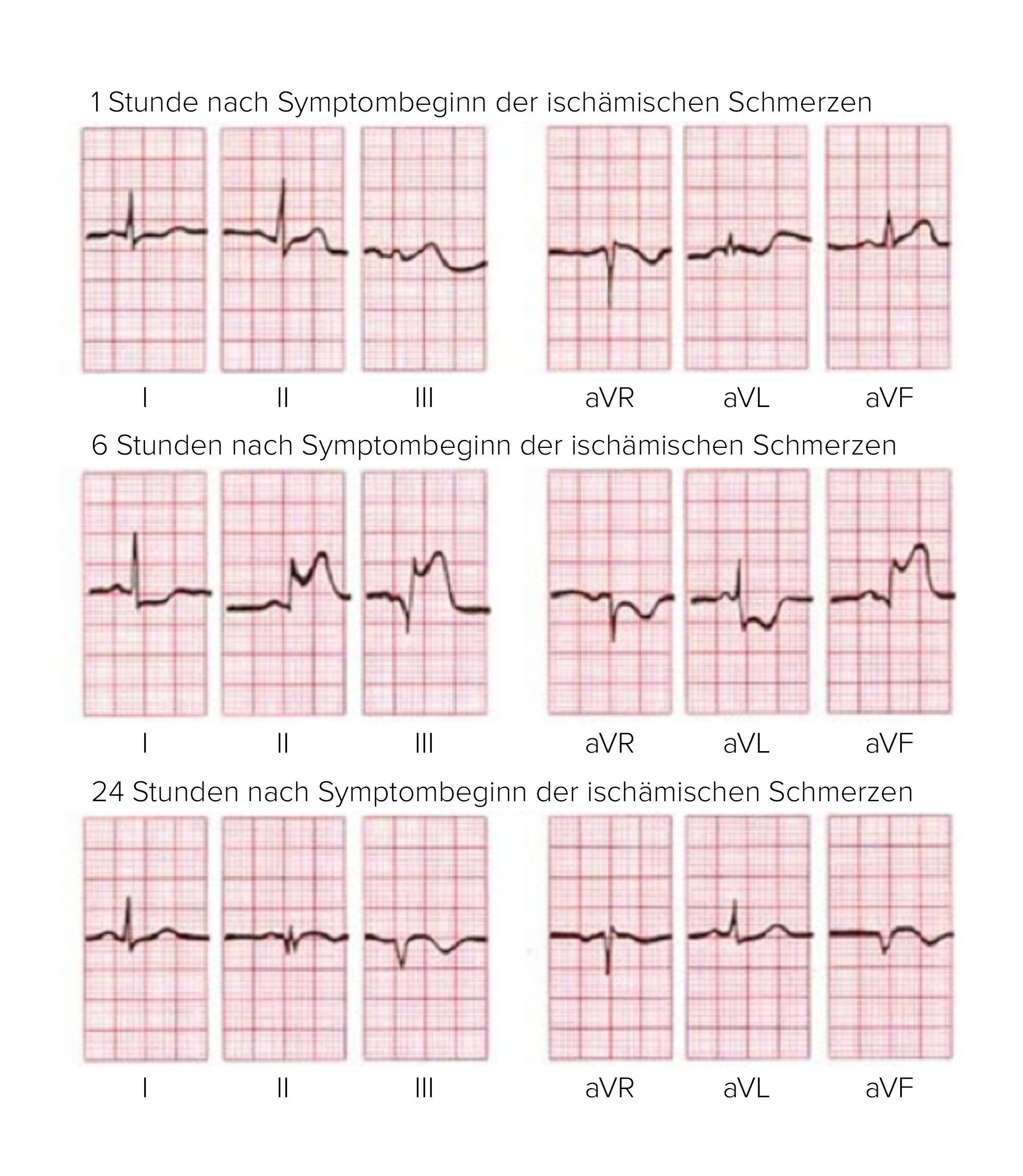 Herzinfarkt Deximed