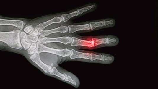 Röntgen bei Verletzungen des Skeletts - Deximed