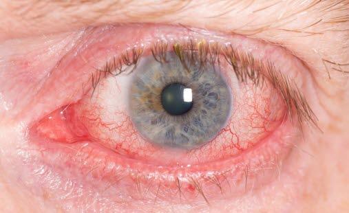 0b805466 Rødt øye, veiviser - NHI.no