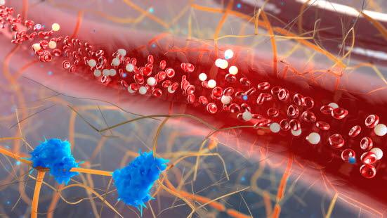 hvite blodlegemer i urinen kreft