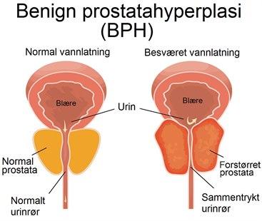 godartet forstørret prostata