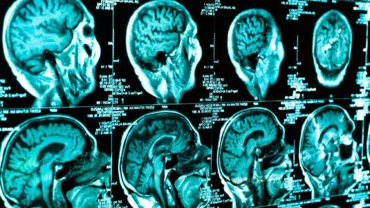 CT des Gehirns - Deximed