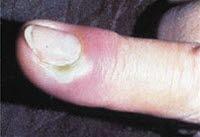 kronisk soppinfeksjon behandling