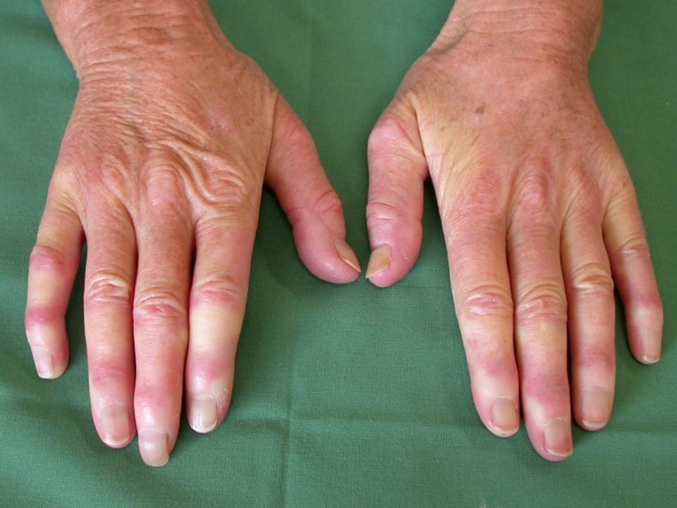Ein Raynaud-Syndrom wird in 20–40 % der Fälle bei Dermatomyositis beobachtet.