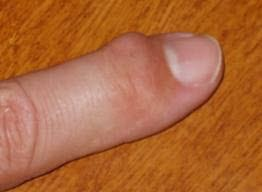 hovent ledd i finger