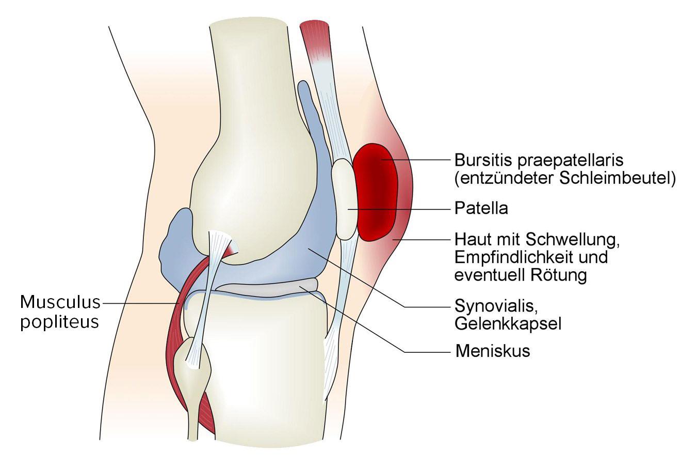 Bursitis_praepatellaris.jpg