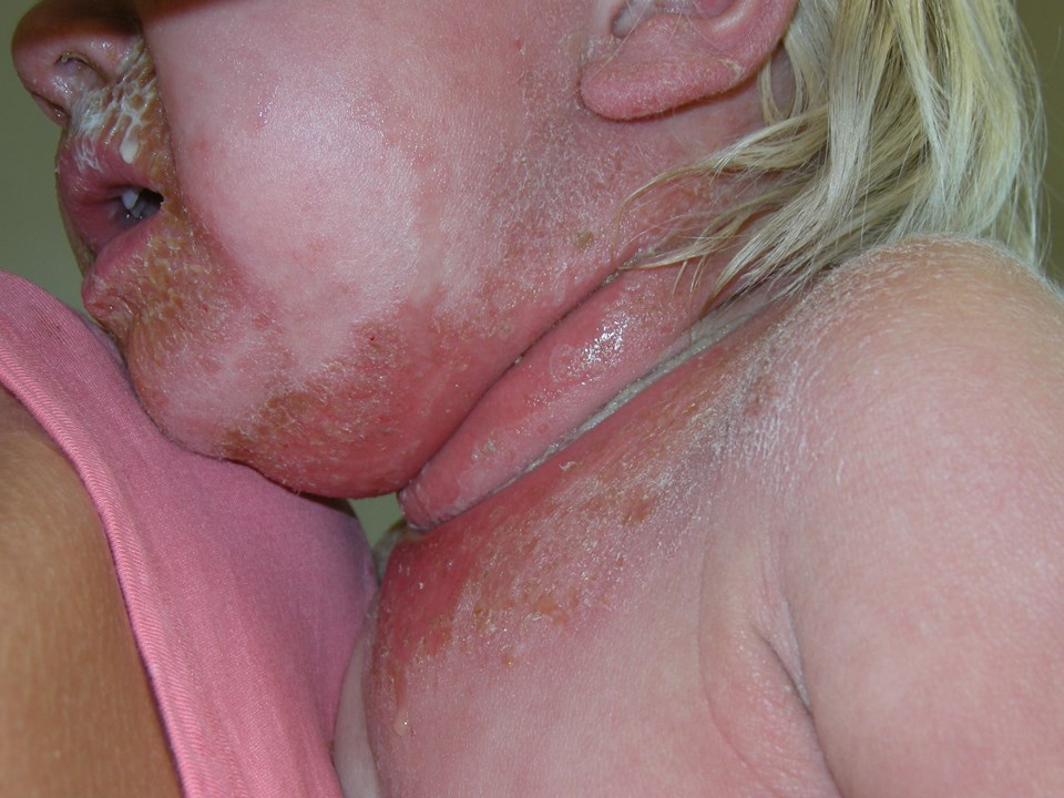47331-2-staphylococcal-scalded-skin-syndrome.jpg