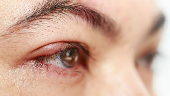 d816509f Øyelokksbetennelse (blefaritt) - NHI.no