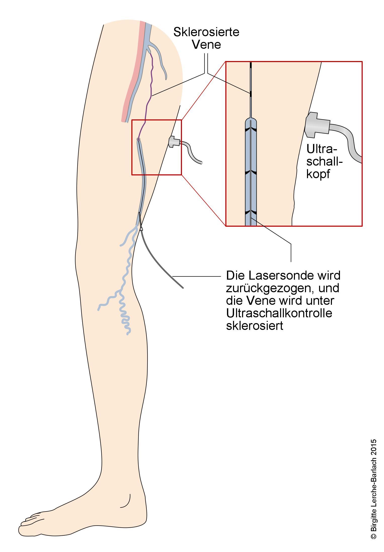 Ausgezeichnet Venenanatomie Galerie - Anatomie Von Menschlichen ...