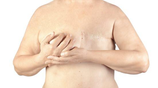 kreft i brystet
