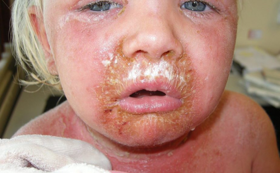 47332-2-staphylococcal-scalded-skin-syndrome.jpg
