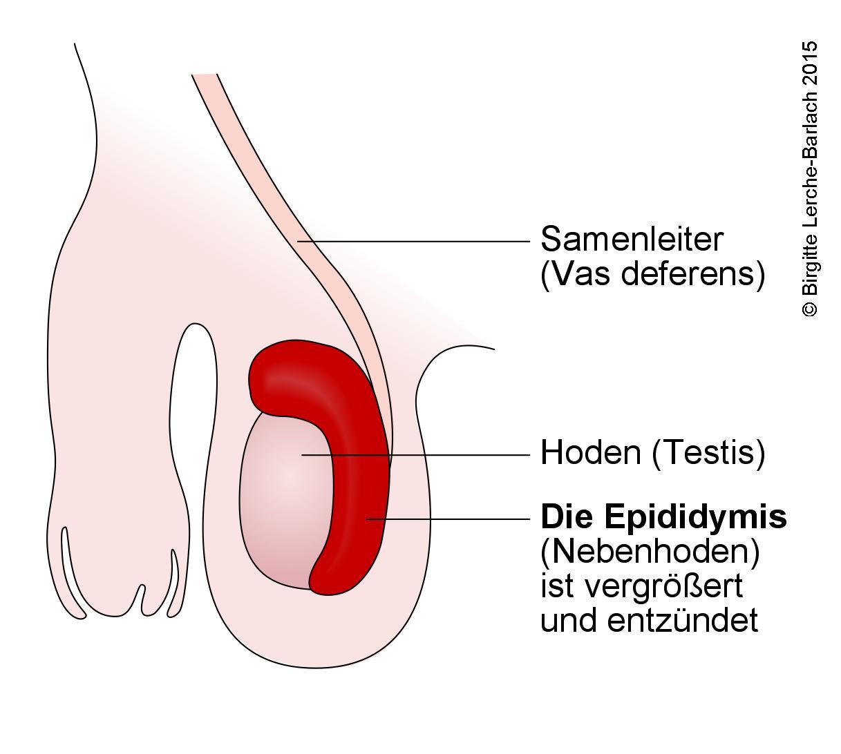 Skrotum Epididymitis.jpg