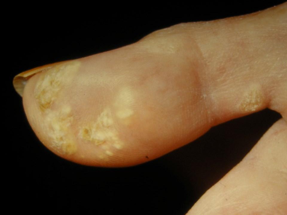 Eine Kalzinose manifestiert sich als feste, gelbe oder fettfarbige Knötchen, oft über knöchernen Vorsprüngen.